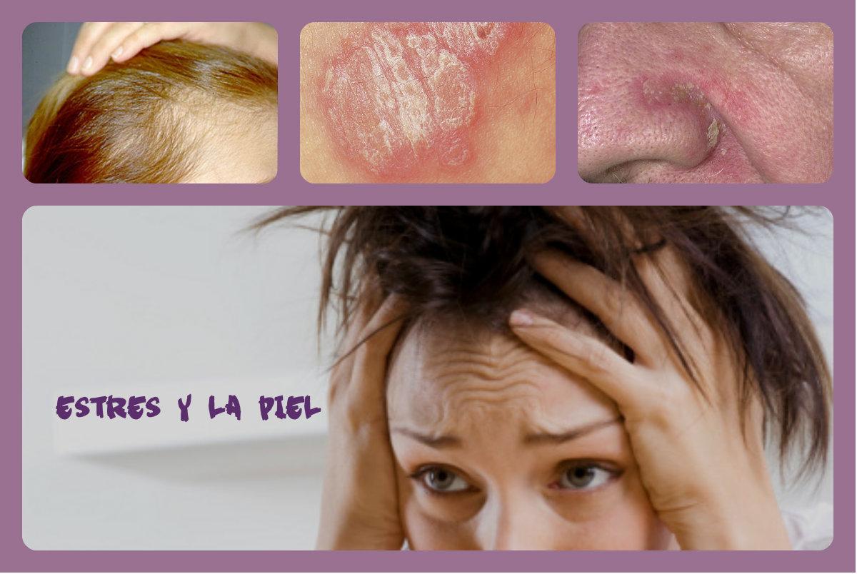 ... la piel | Marketing y Comunicación sector perfumería y cosmética